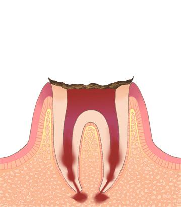 ⑤末期の虫歯