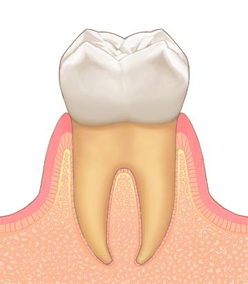 ①健康な歯